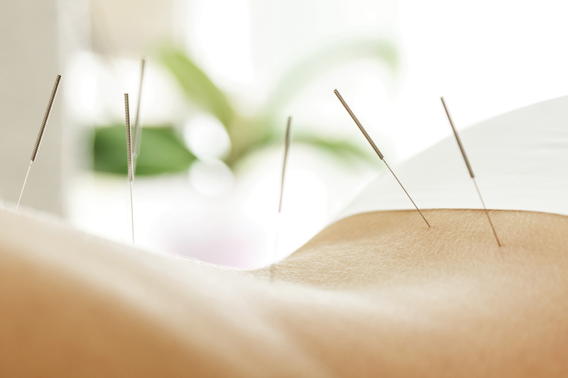 Find Peace With Acupuncture